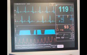 Monitorización sin complicaciones durante una cirugía rutinaria