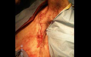 La sutura intradérmica facilita la limpieza y molesta menos. Nos ayudamos de un paño pequeño bien sujeto.