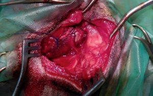 Comienzo del cierre de la herida quirúrgica tras la tenotomía