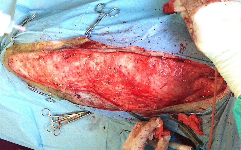 Herida quirúrgica resultante tras mastectomía radical en una perra