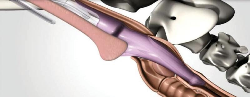 Sellado mediante v-gel dentro de la faringe, sobre la laringe y la tráquea
