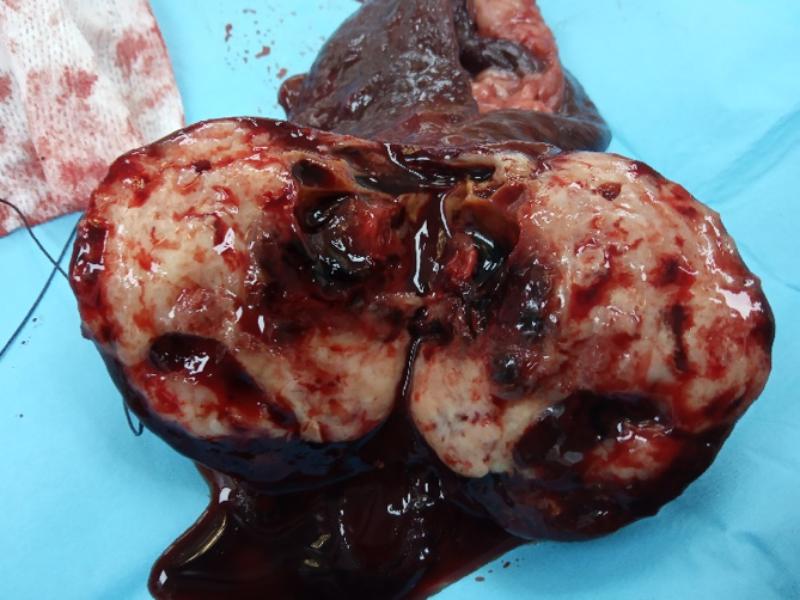 Tumor sólido en bazo (resultó ser un Sarcoma histiocítico)