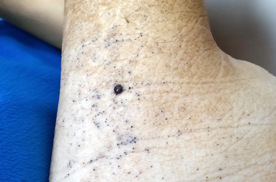 Figura 2. Melanoma cutáneo