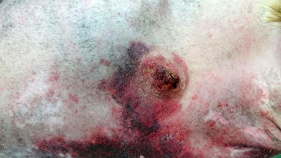 Figura 4. Mastocitoma con hematoma asociado